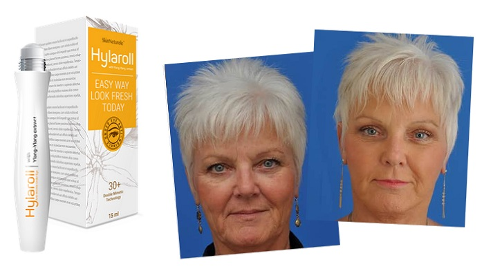 Hylaroll redőkből: az anti-aging arcfiatalító gél 21 nap alatt kisimítja a mély ráncokat!