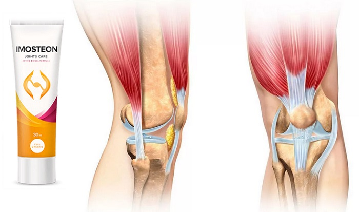 Imosteon ízületekhez: szabaduljon meg a fájdalomtól és a gyulladástól!