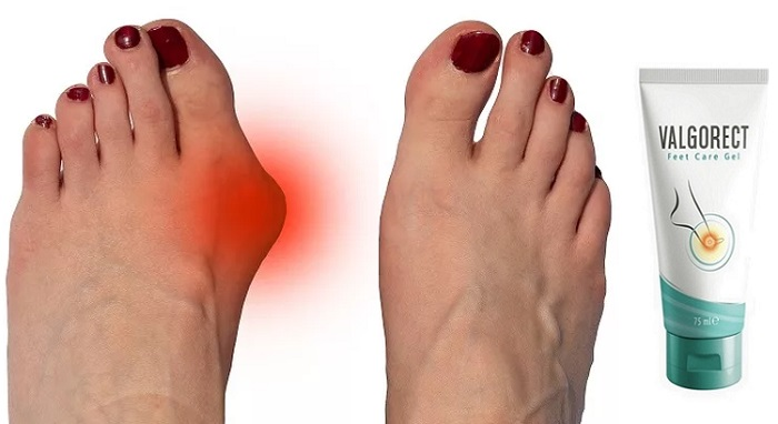 Valgorect a láb deformitás: megszabadulni a csomók a lábát műtét nélkül!