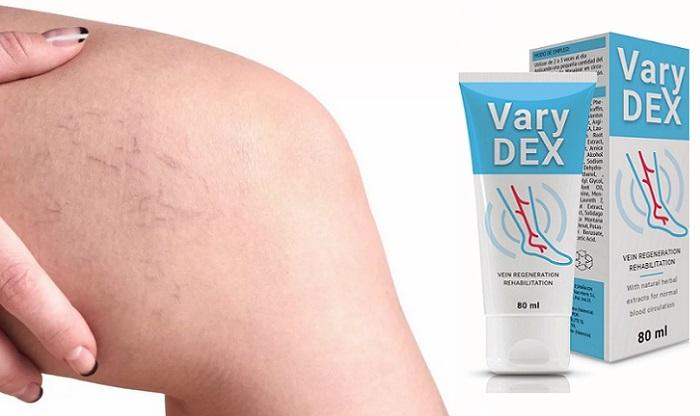 Varydex visszerek: teljes gyógyulás mindössze 28 nap alatt!